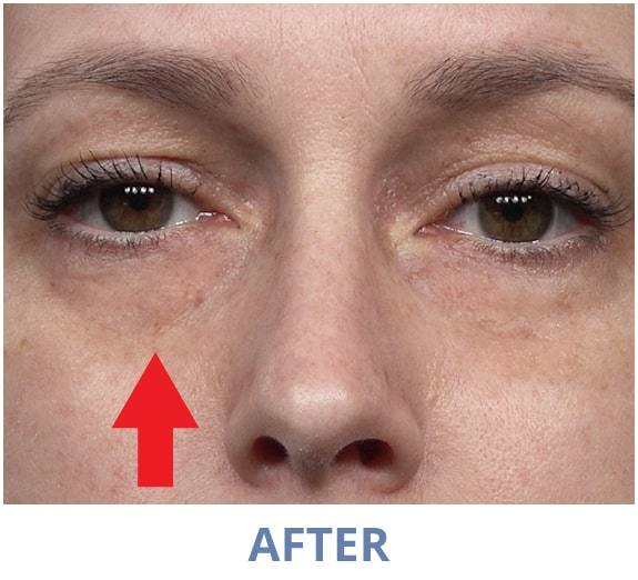 Jacqueline After applying Rapid Reduction Serum