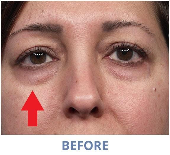 Samantha Before applying Rapid Reduction Serum