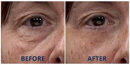 Official Plexaderm Skincare Reduce Under Eye Bags Dark Circles