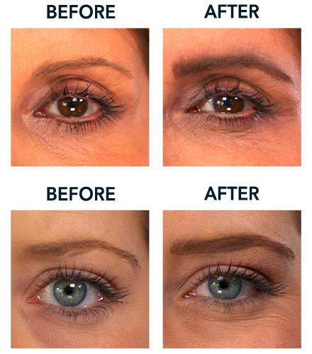Before and After Designer Brows - Classic
