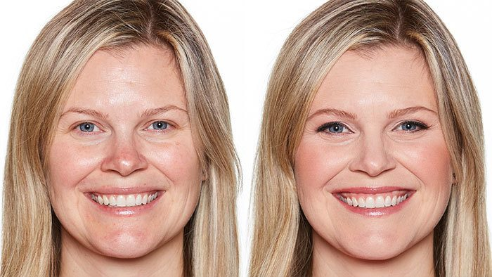 Before and After Image of Younger Blonde Woman
